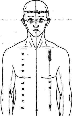 posture du corps pnl